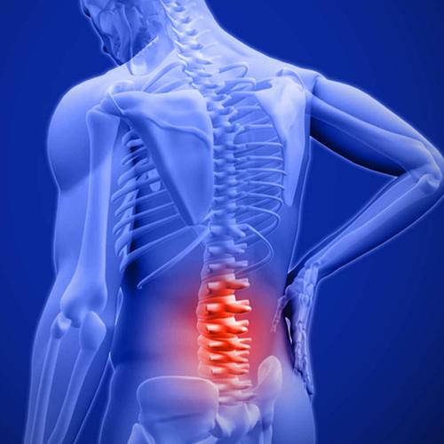 Trị liệu thần kinh cột sống cơ xương khớp